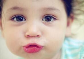 宝宝嘴唇干